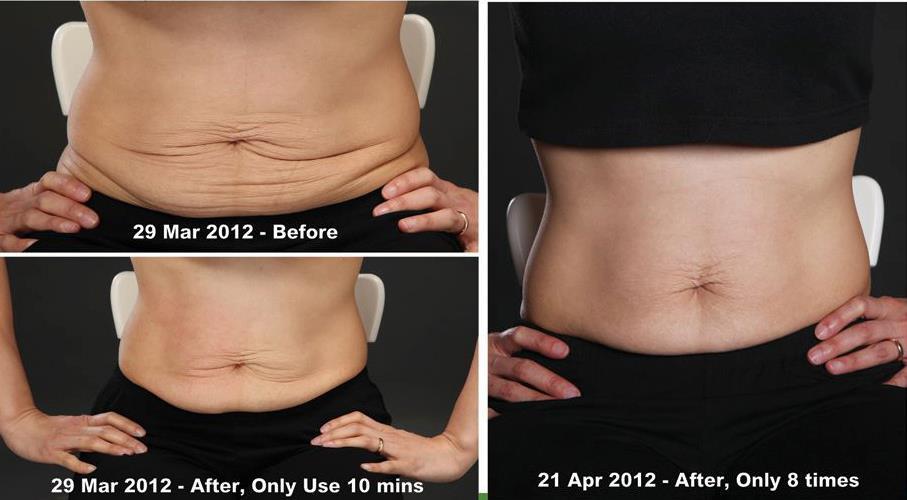 Kết quả tuyệt vời của sản phẩm body shaping gel