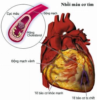 Những vấn đề về tim mạch